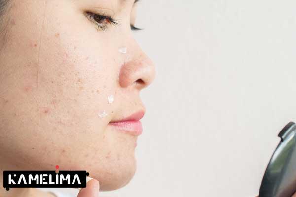 پاک کردن صورت برای از بین بردن لکه پوست