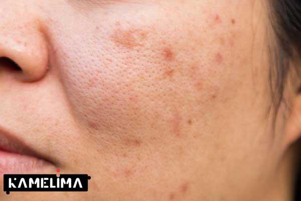 درمان لکه پوست